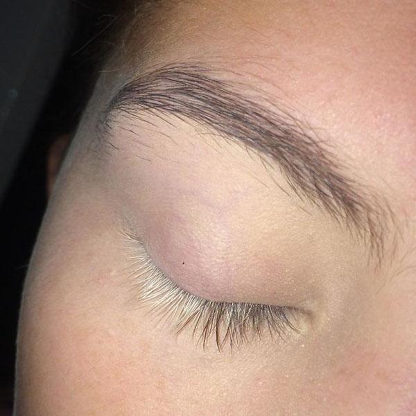Vitiligo eyelashes