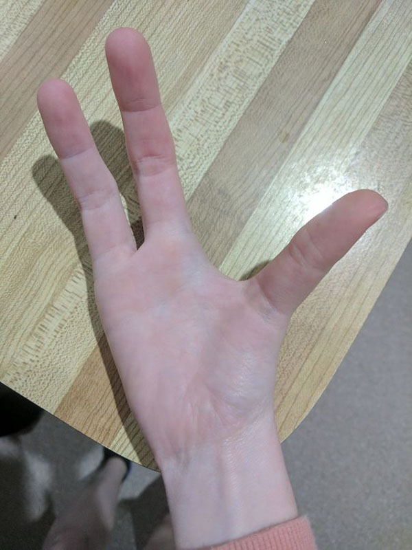 cleft hand