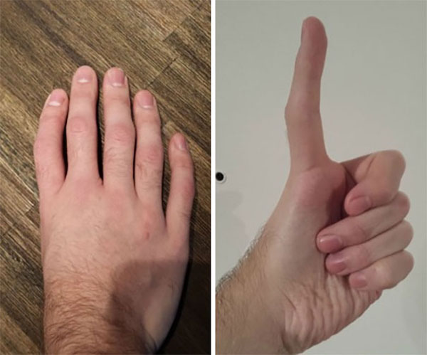 triphalangeal thumb