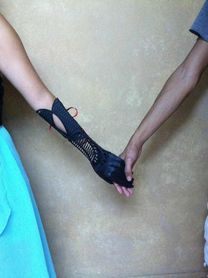 3d printing brilliant creations prosthetic arm