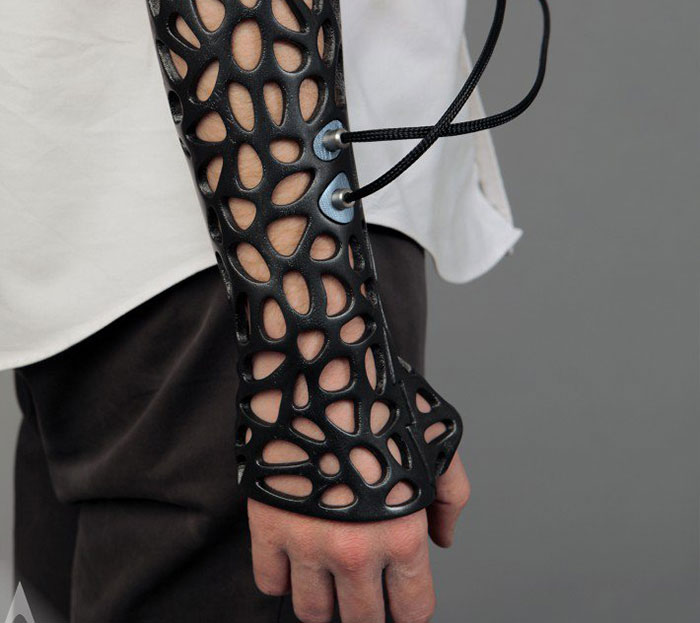 3d printing brilliant creations ulstrasound plastic cast