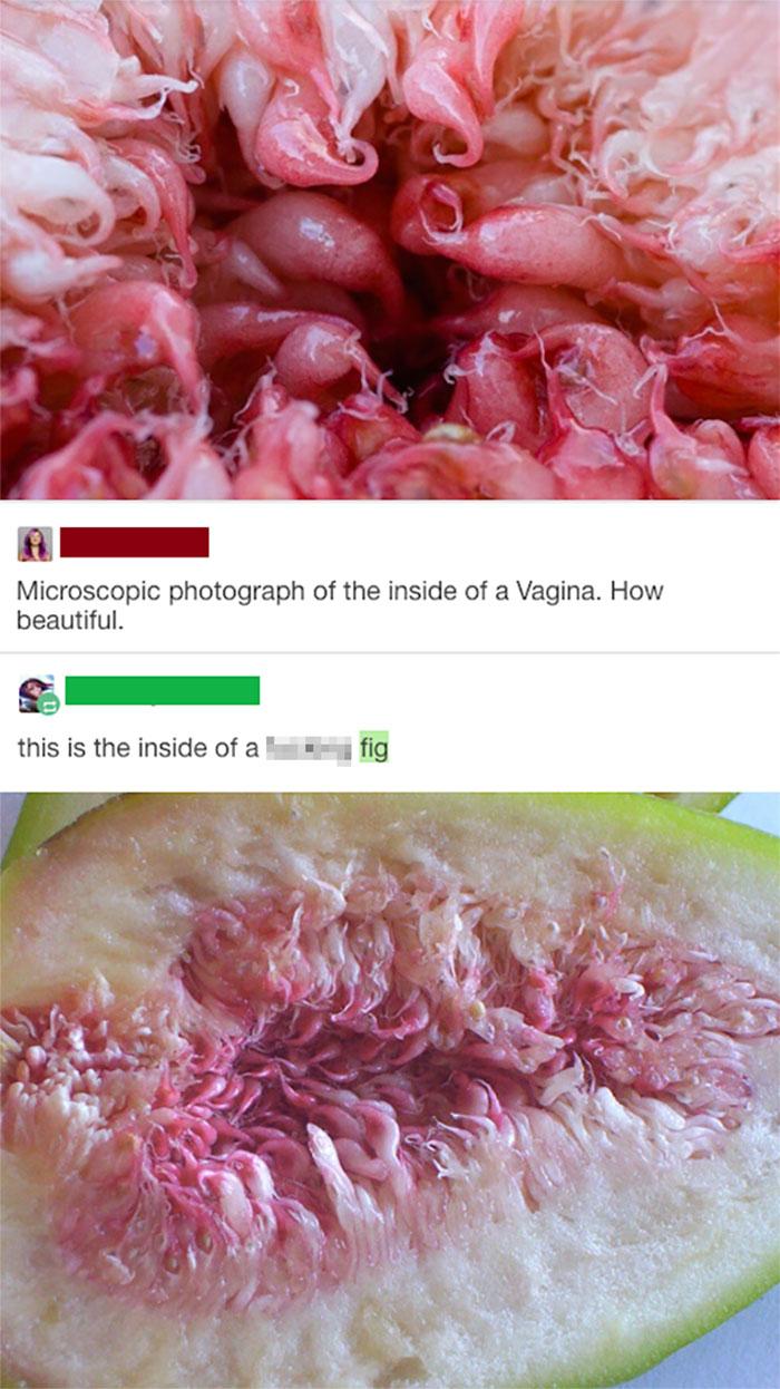 embarrassing moments microscopic vagina