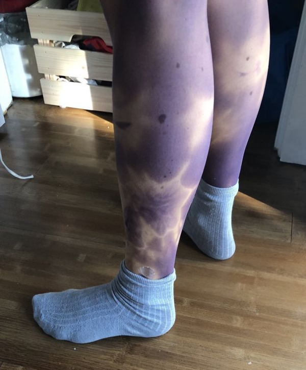 funniest fashion fails tights make you look bruised