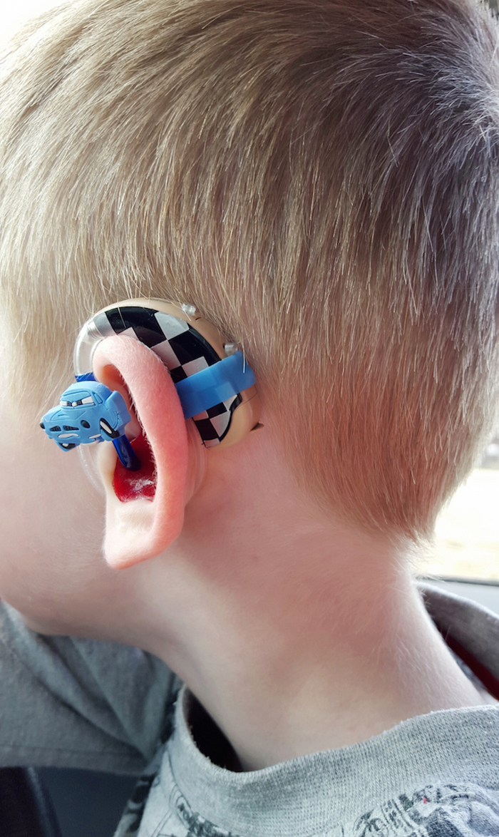 lugs disney cars hearing aids cochlear implants