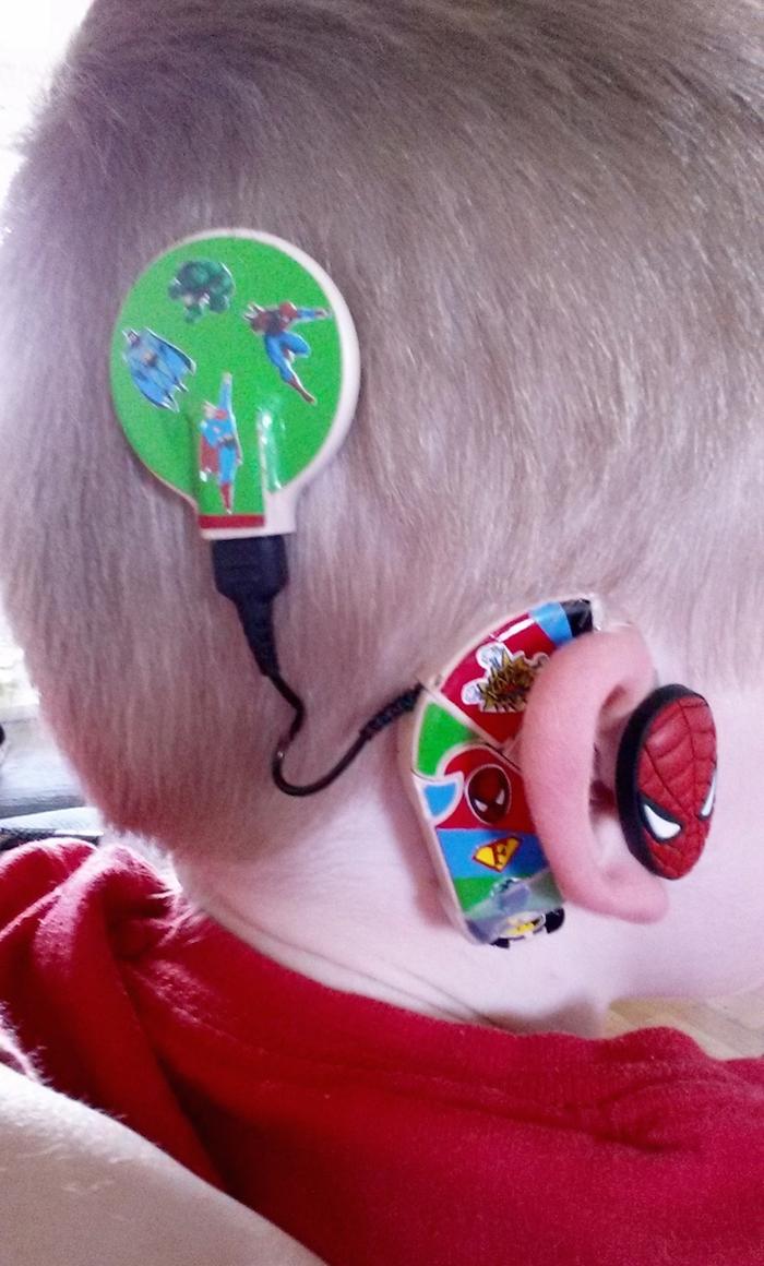 sarah ivermee spiderman hearing aids