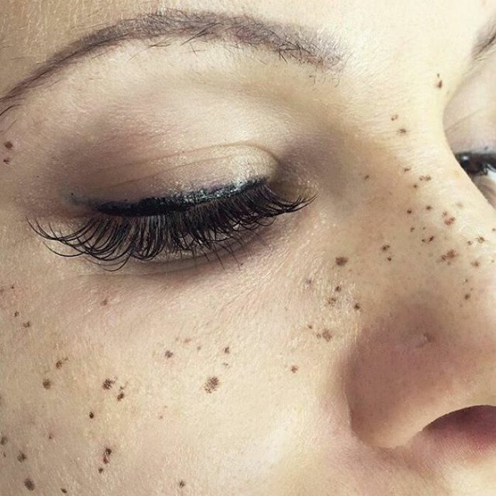 Closeup of a Dark Shade Freckle Tattoos on Face