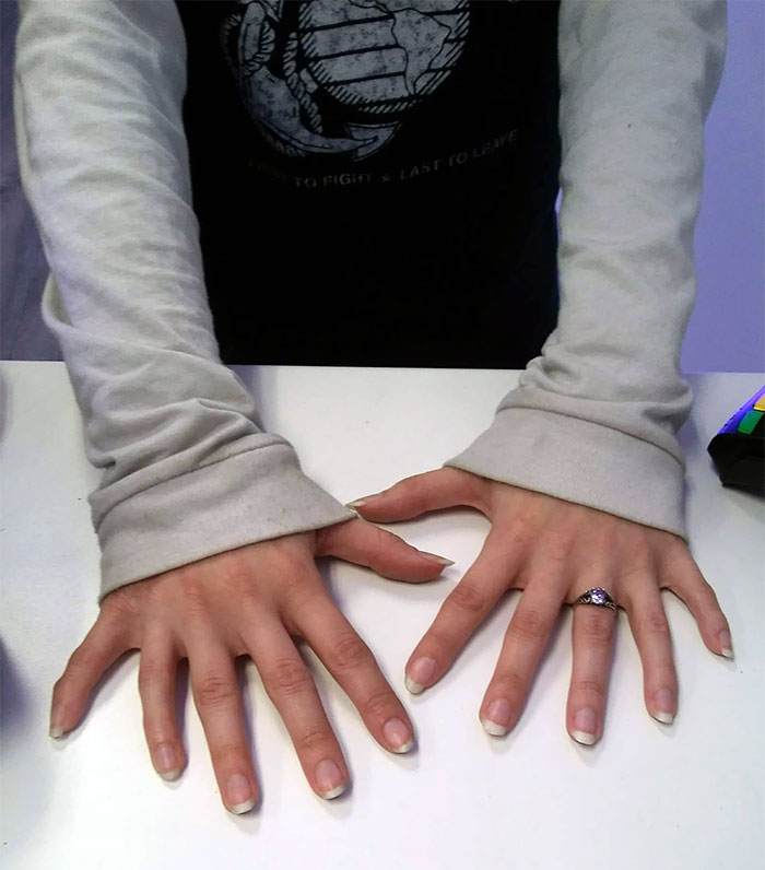 Hands with 12 Fingers