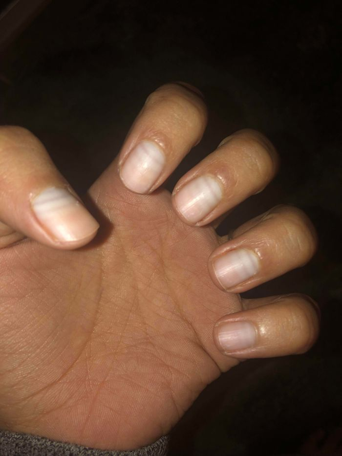 Nails Growing Patterns in Between Chemo Cycles