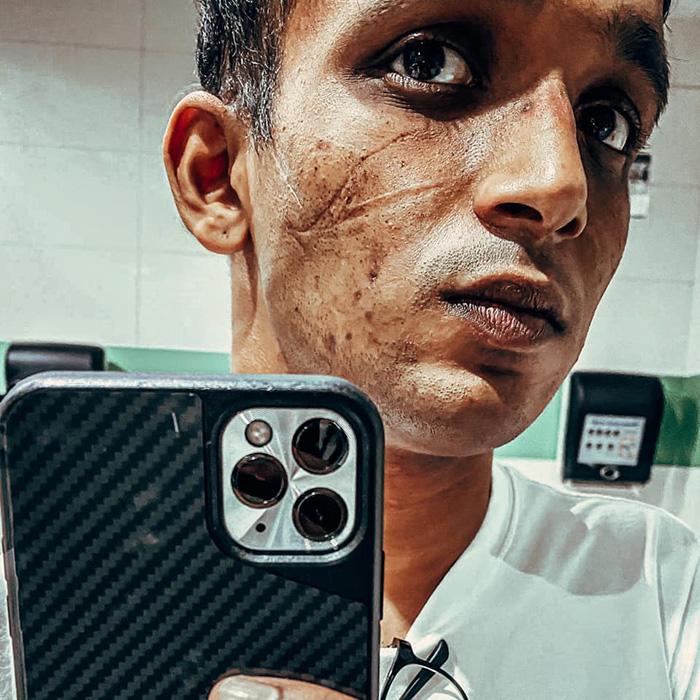 Benjamin Ong Overworked Doctor Selfie