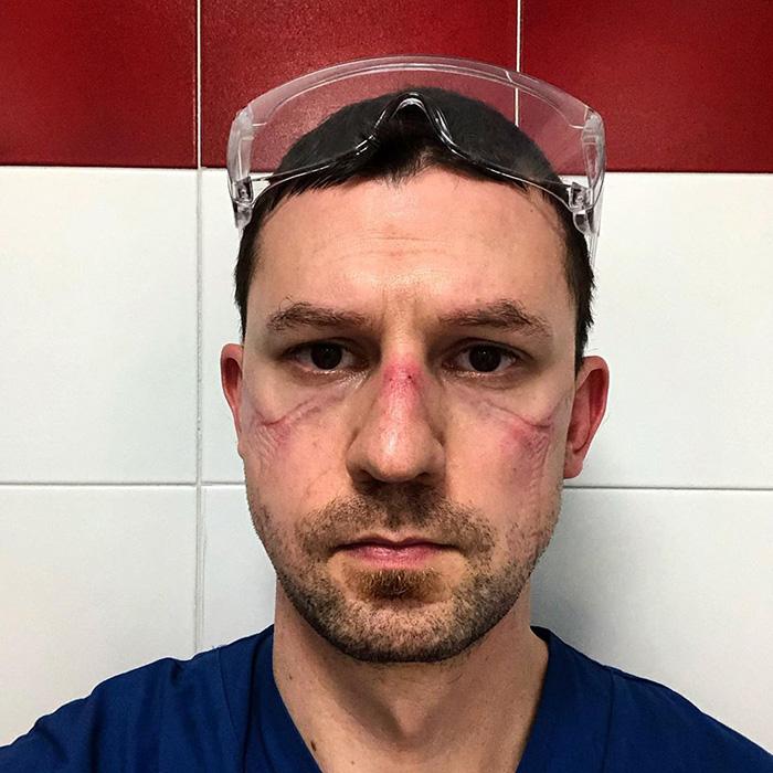 Nicola Sgarbi Overworked Doctor Selfie after 13 Hours in ICU