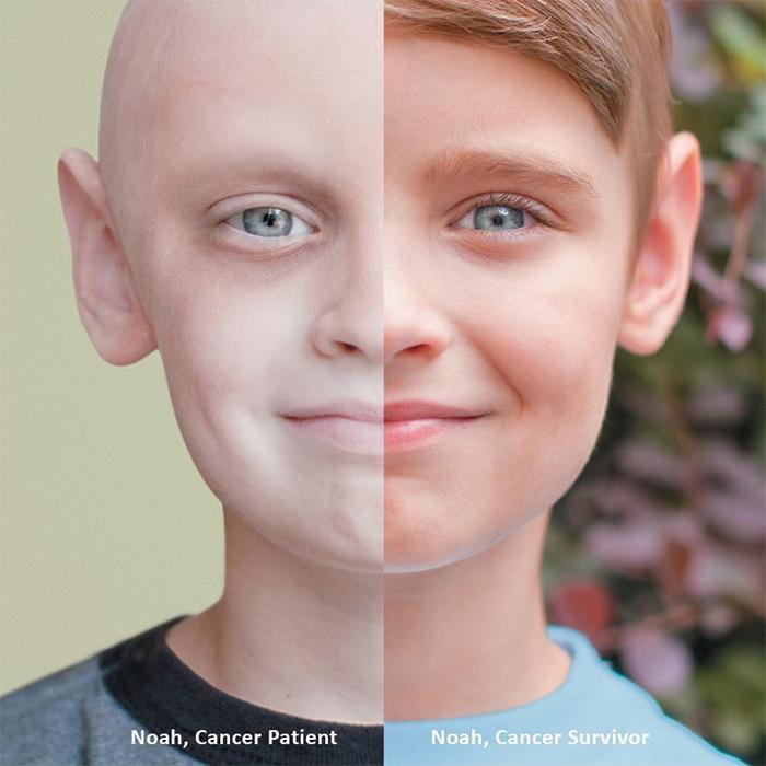 comparison images of a cancer survivor