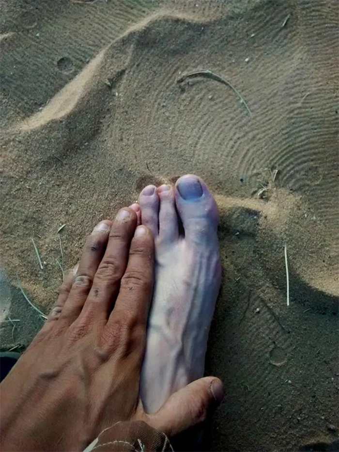 tan hand compared to foot