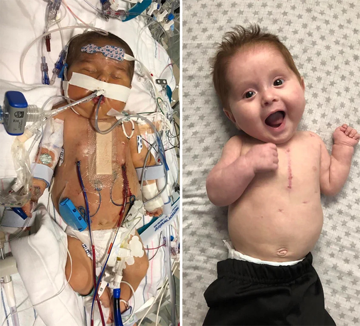 baby with heart defect recovers