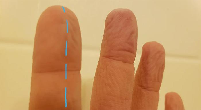 index finger half severed nerve