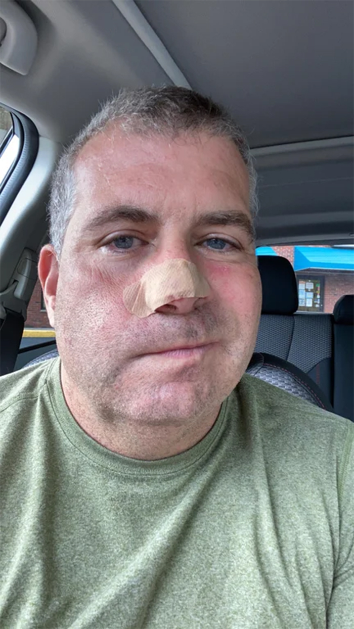 cat owner wounded nose