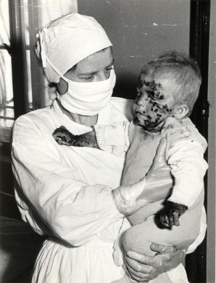 nurse holding a child with smallpox