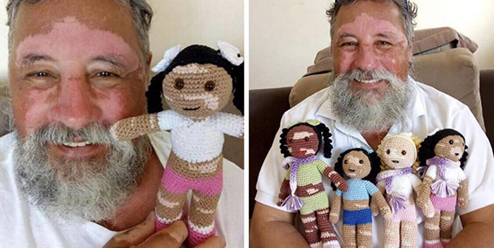 old people being wholesome grandfather with vitiligo crocheting dolls with the same condition