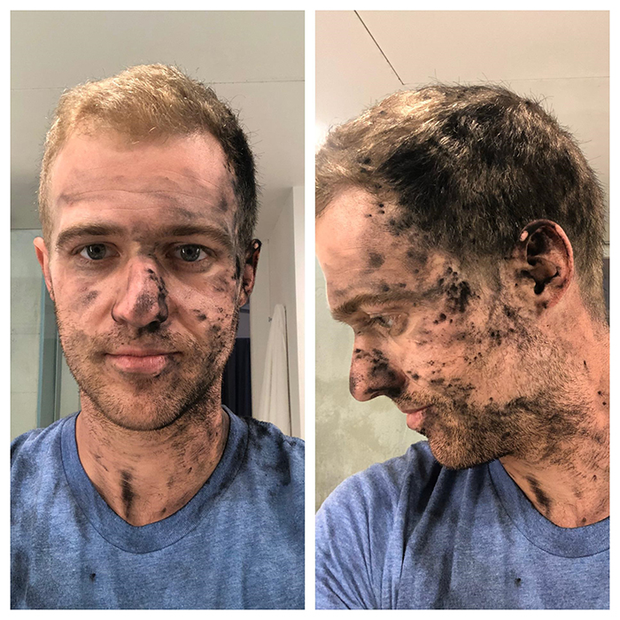 printer ink all over man's face