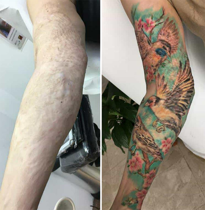 tattoo cover-ups arm burn scar