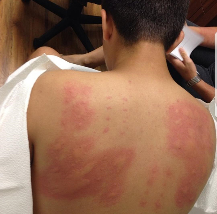 things gone wrong man allergic to almost everything on allergy skin test